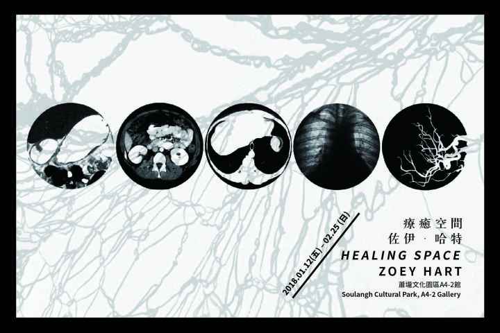 5 circular images of diagnostic internal imagery show the 5 body systems included in the Taoist understanding of the body's relationship with the environment. Behind the circles is a light gray shadow of the north wall installation web drawing included in the exhibition.